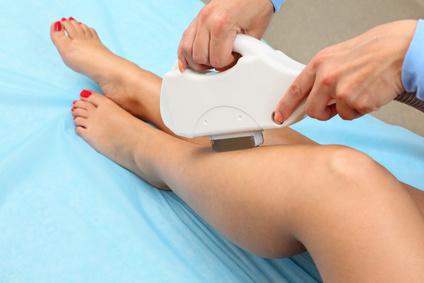 depilazione-laser